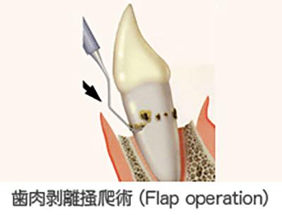 歯肉剥離掻爬術